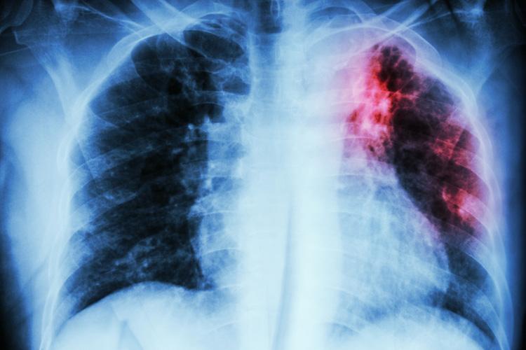 Чтобы люди не умирали от туберкулеза!