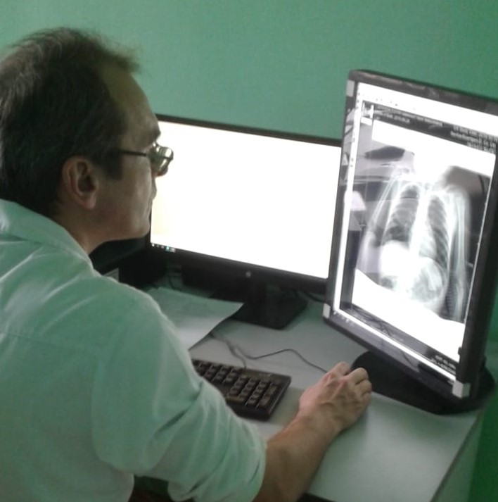 В Березовской ЦГБ для детей начал работать новый  рентгеновский диагностический комплекс